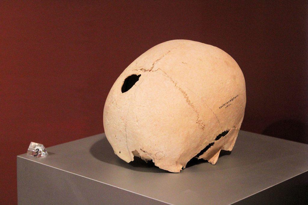 Cranio trapanato